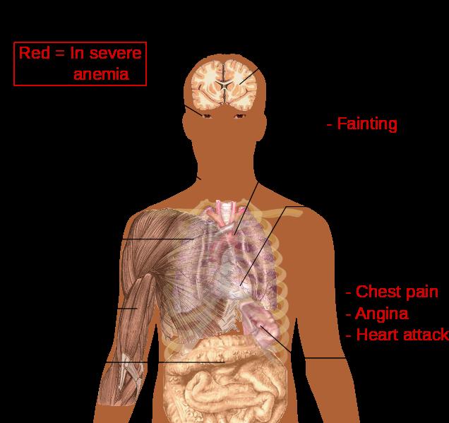 الانيميا Anemia 71883.png