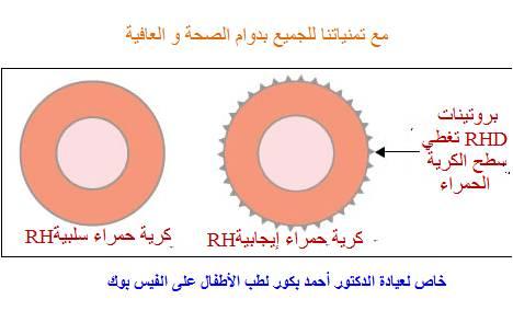 الانيميا Anemia 71887.jpg