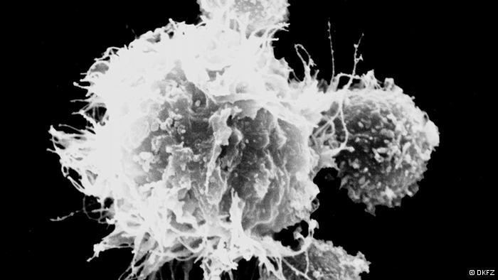 الكيمياء السرطان 137469.jpg
