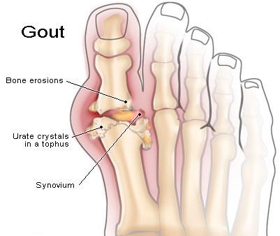 Gout 164938.jpg