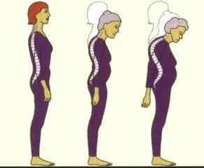 العظام,اسباب الاصابة العظام,اعراض 194340.jpg