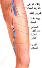 الساقين,اسباب الاصابة الساقين,اعراض الساقين 196570.jpg
