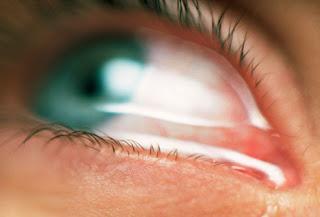 العين,اسباب الاصابة بحساسية العين,اعراض 252395.jpg