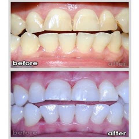 اسنانك صفراء معنا لاتقلقى خلى ابتسامتك علينا 260007.jpg