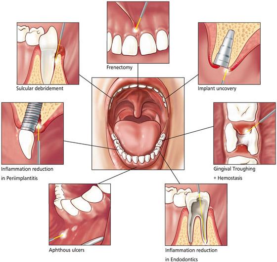 احدث تقنية لعلاج الاسنان بدون 295696.jpg